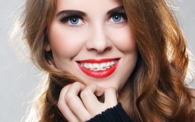 Perchè fare un trattamento ortodontico?